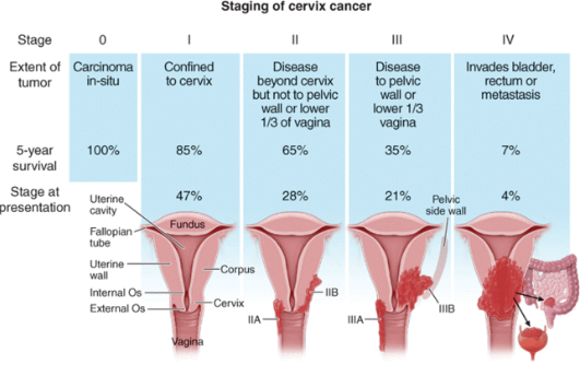 uterine cancer treatment stage 1 cancer de pancreas biodescodificacion