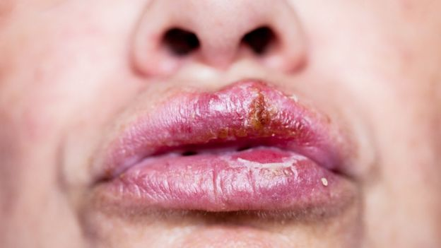hpv herpes labial