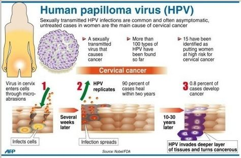 cervical cancer and hpv virus