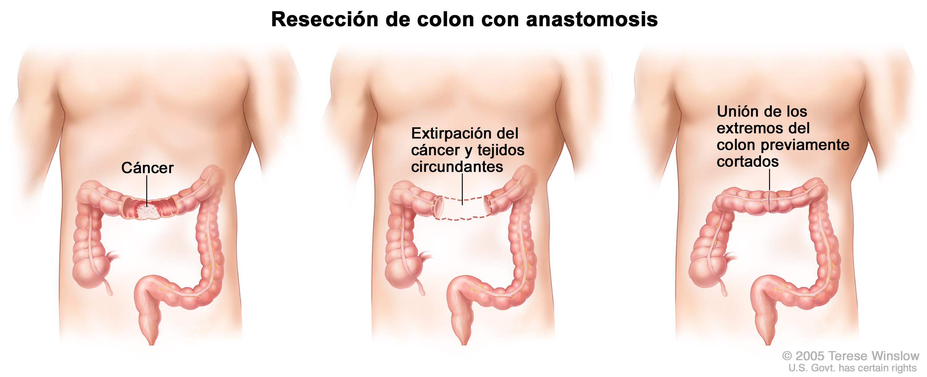 que es cancer colorrectal wart on mouth treatment