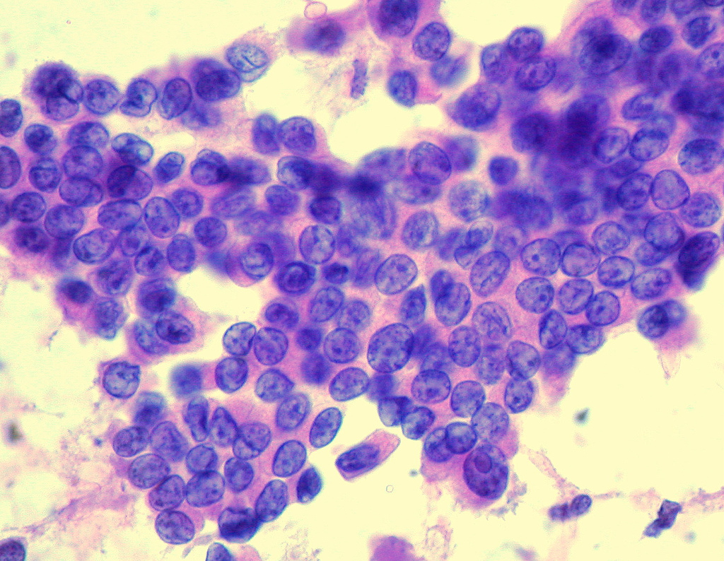 papillary thyroid of cancer human papillomavirus infection journal article