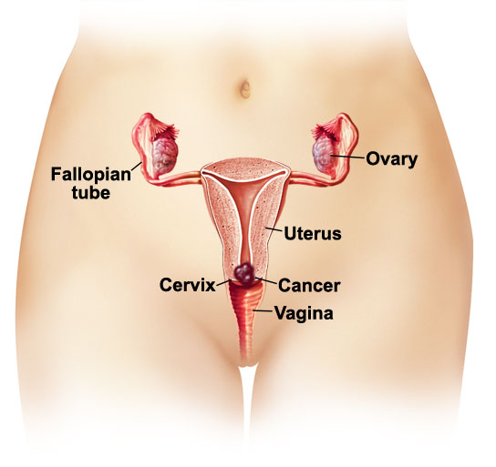 uterine cancer age risk cancer endometrial pronostico
