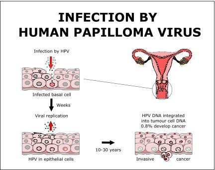 hpv cancer treatment