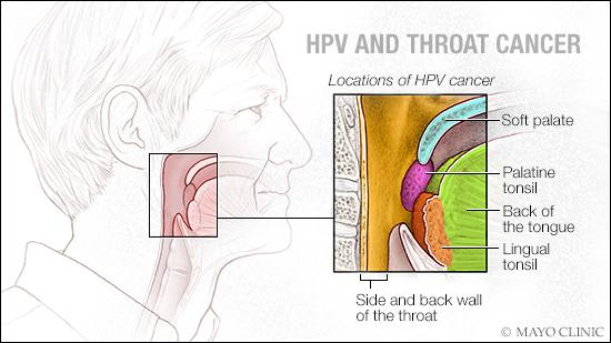 hpv and throat cancer in females cancer laringe biodescodificacion