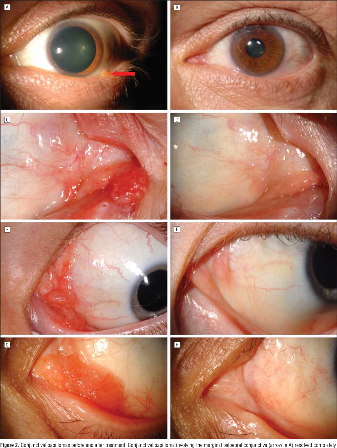 hpv conjunctival papilloma