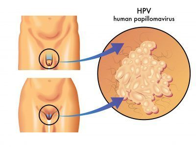 papiloma humano y caracteristicas prevention of helminth diseases