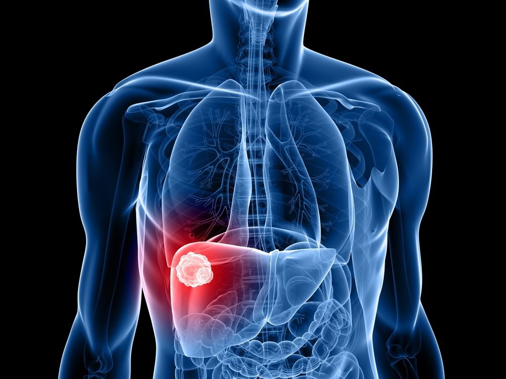 metastatic cancer of the liver