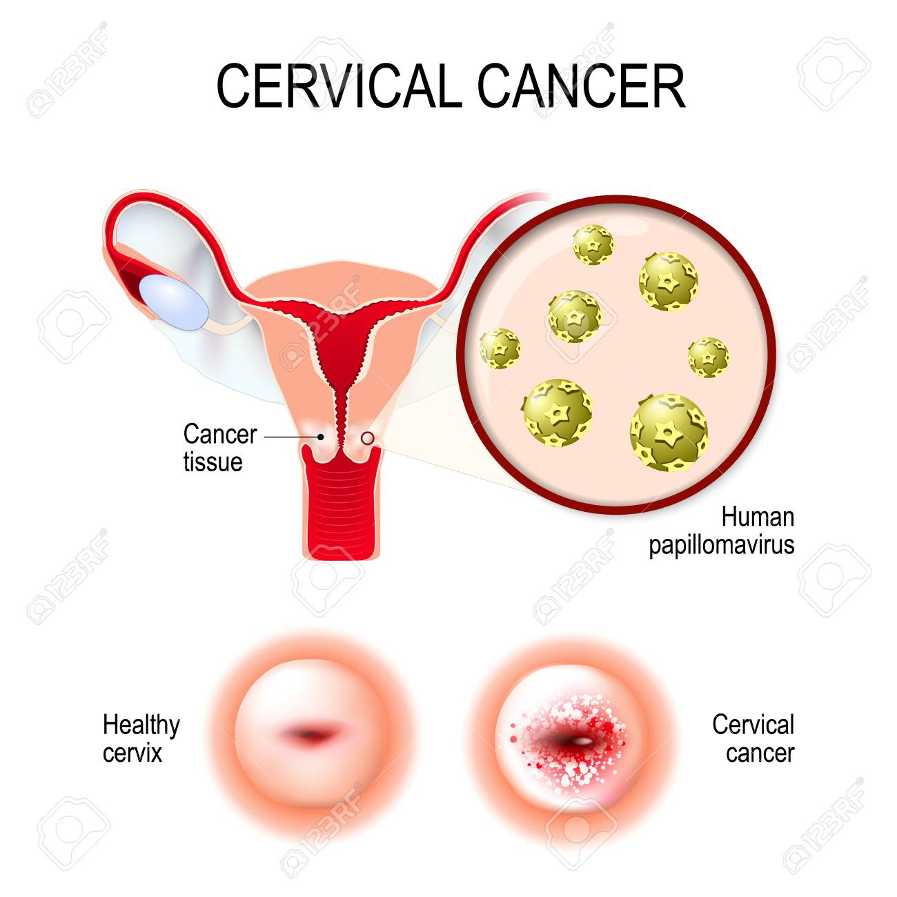 cervical cancer natural treatment hpv warts pubic area