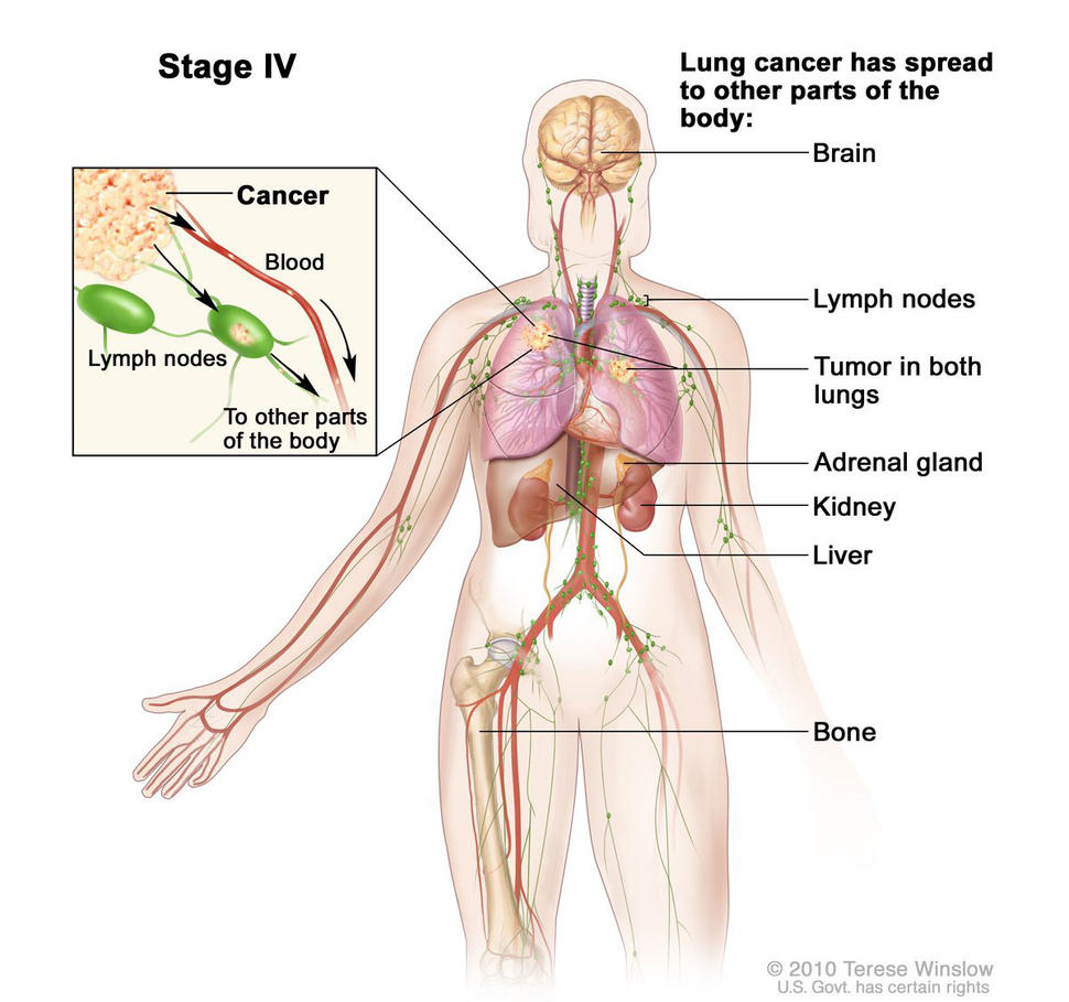 hpv cancer spread to lungs