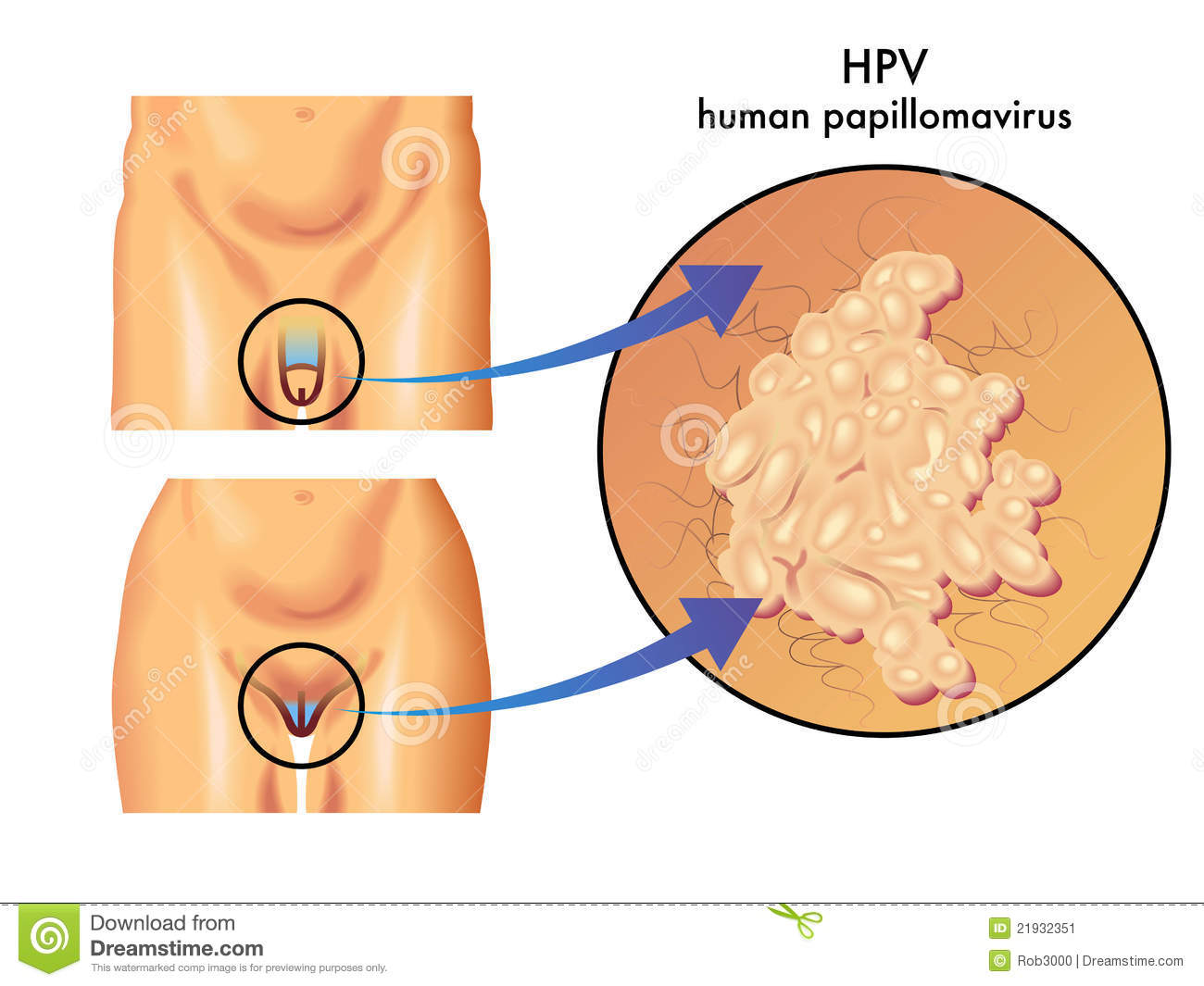 hpv vaccine hong kong hpv vaccine causing cervical cancer