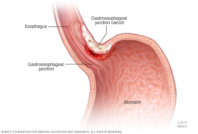 cancer gastric smoking hpv on mouth pictures