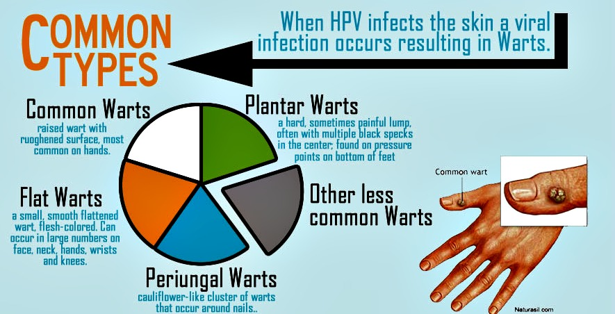 program de detoxifiere hpv and cancer signs