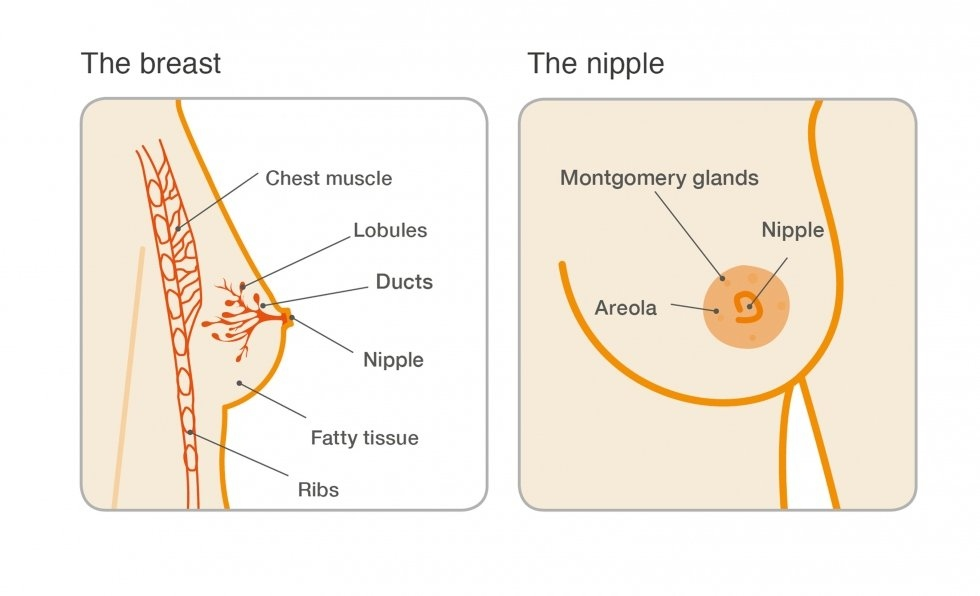 what causes breast duct papilloma