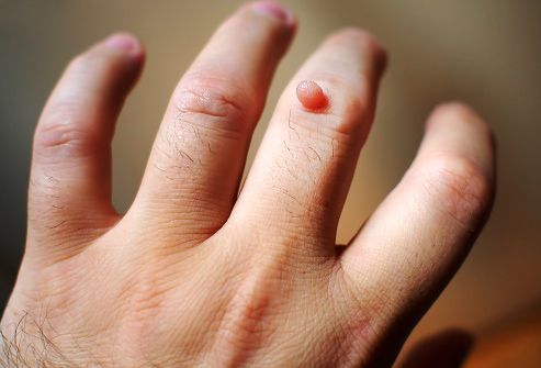 warts on your hands pictures squamous cell papilloma removal