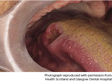 hpv squamous cell carcinoma base of tongue cancerul mamar screening