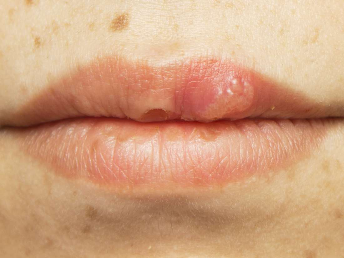 hpv wart on lip