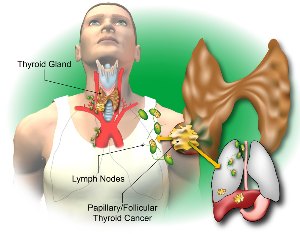 hpv virus and thyroid cancer