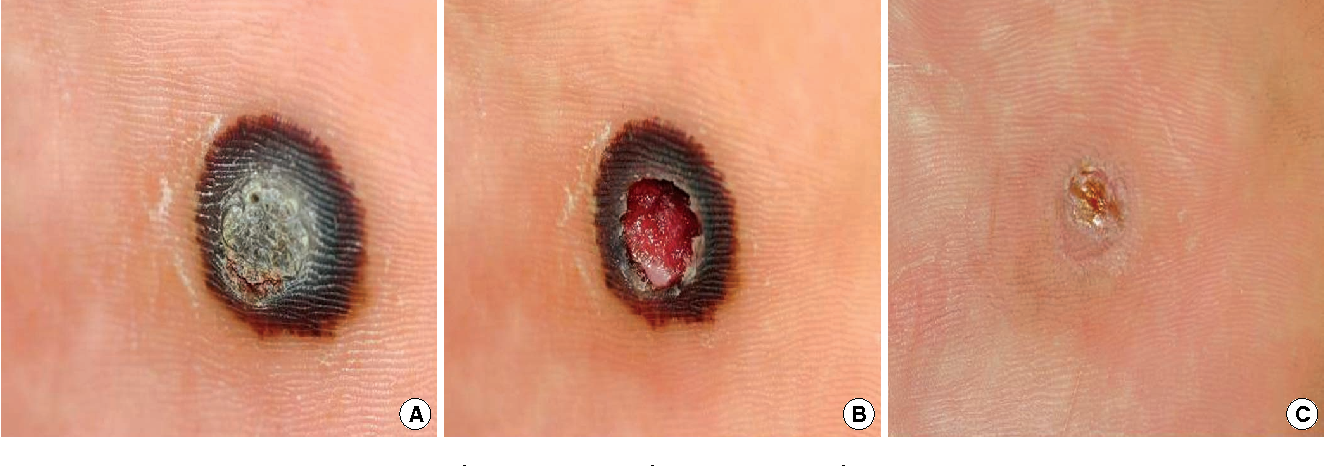 warts treatment for laser cancer of hepatic vein