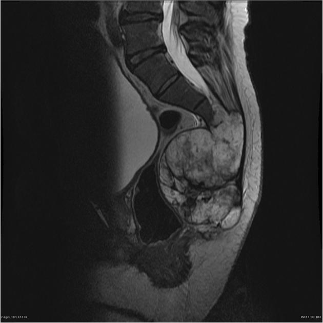 metastatic cancer of the sacrum