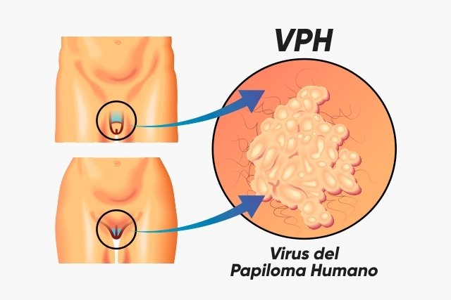 does hpv cause prostate cancer papillon zeugma spa prices