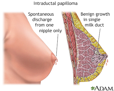 intraductal papilloma surgery what to expect