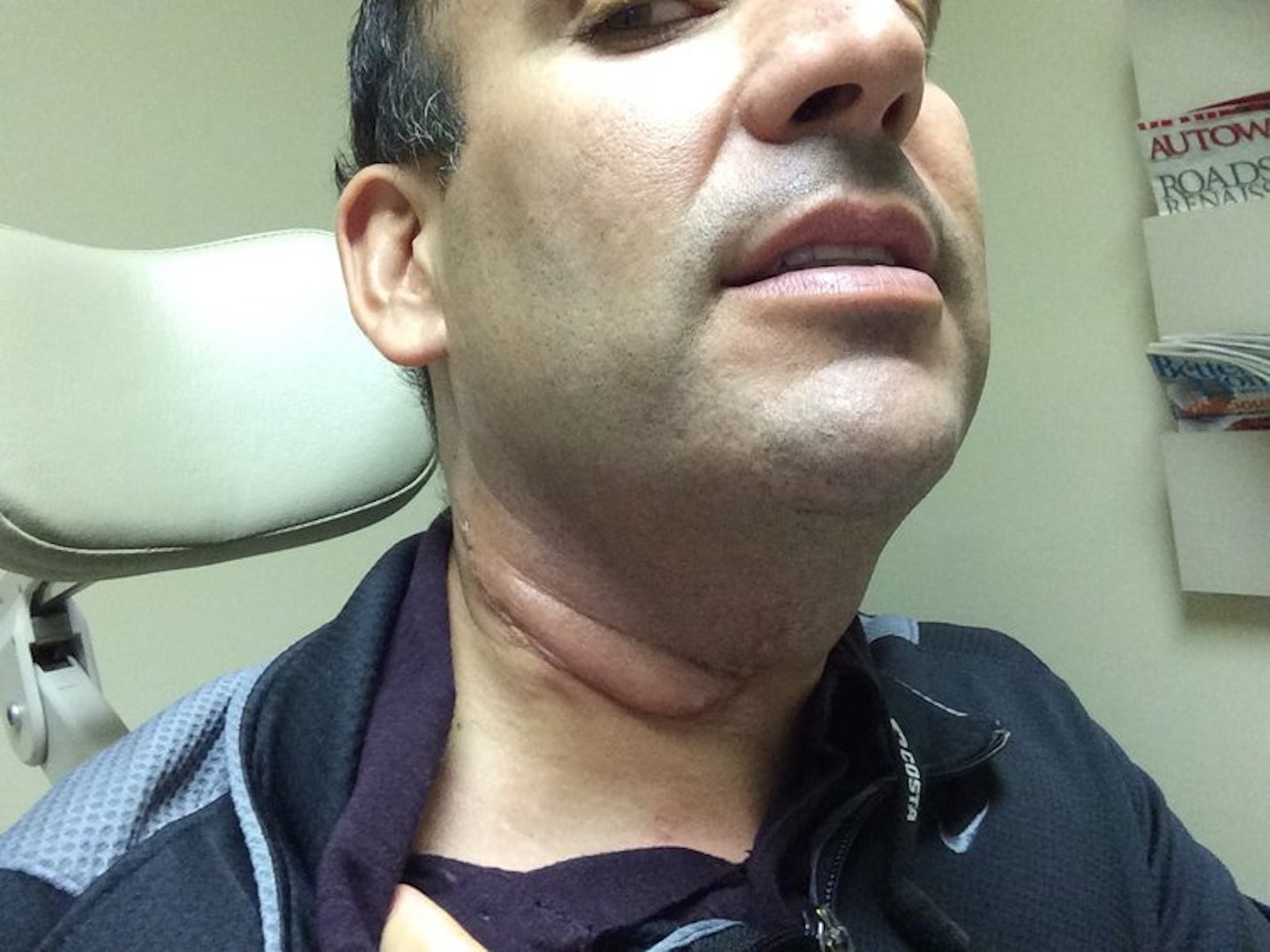 hpv causing neck cancer hpv diagnosis nhs