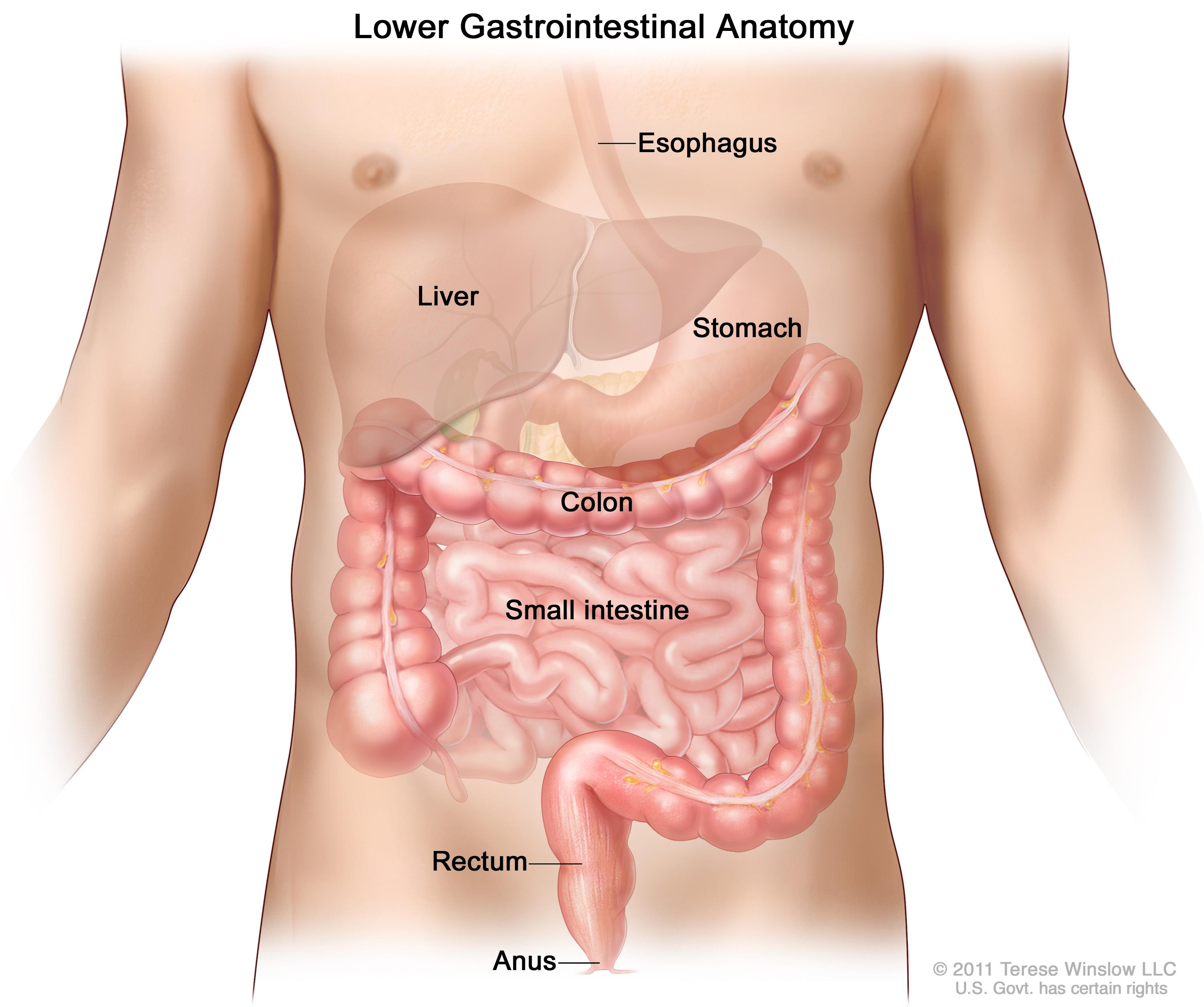 cancer colon sigmoid simptome