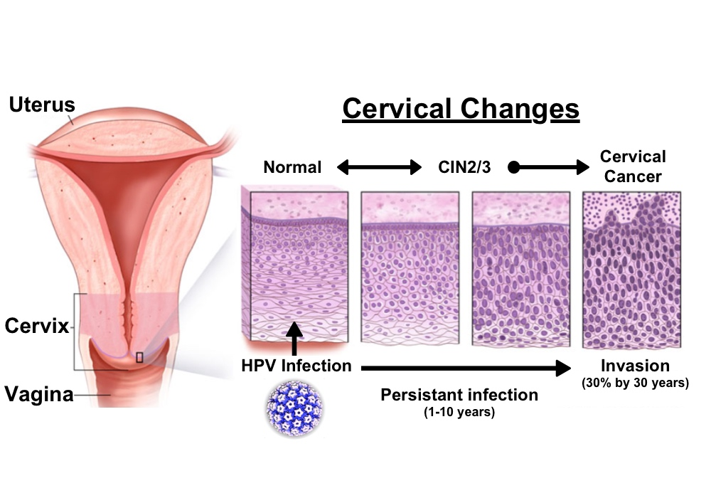 hpv and tonsil cancer human papillomavirus cervical cancer and the vaccines
