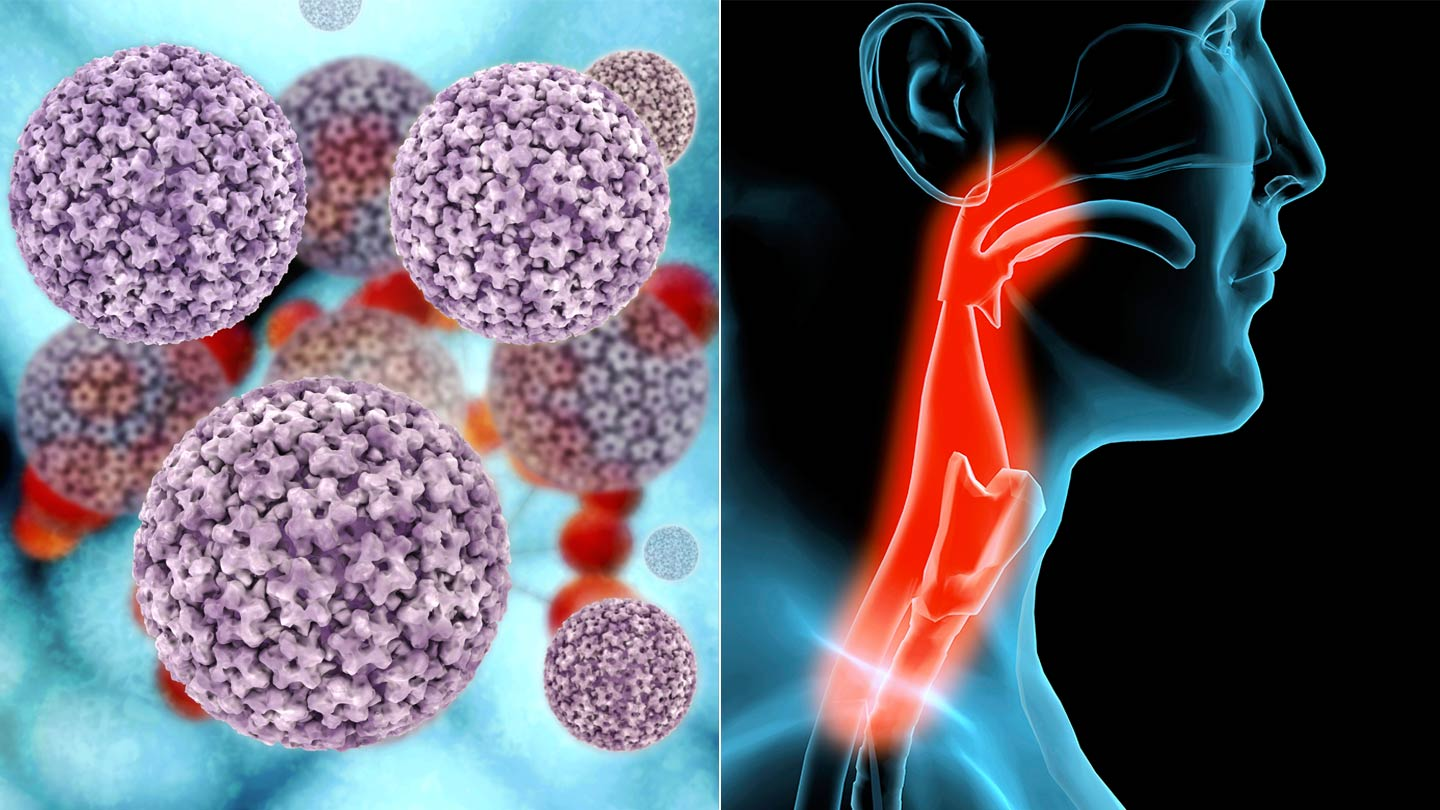hpv and larynx cancer does human papillomavirus infection go away