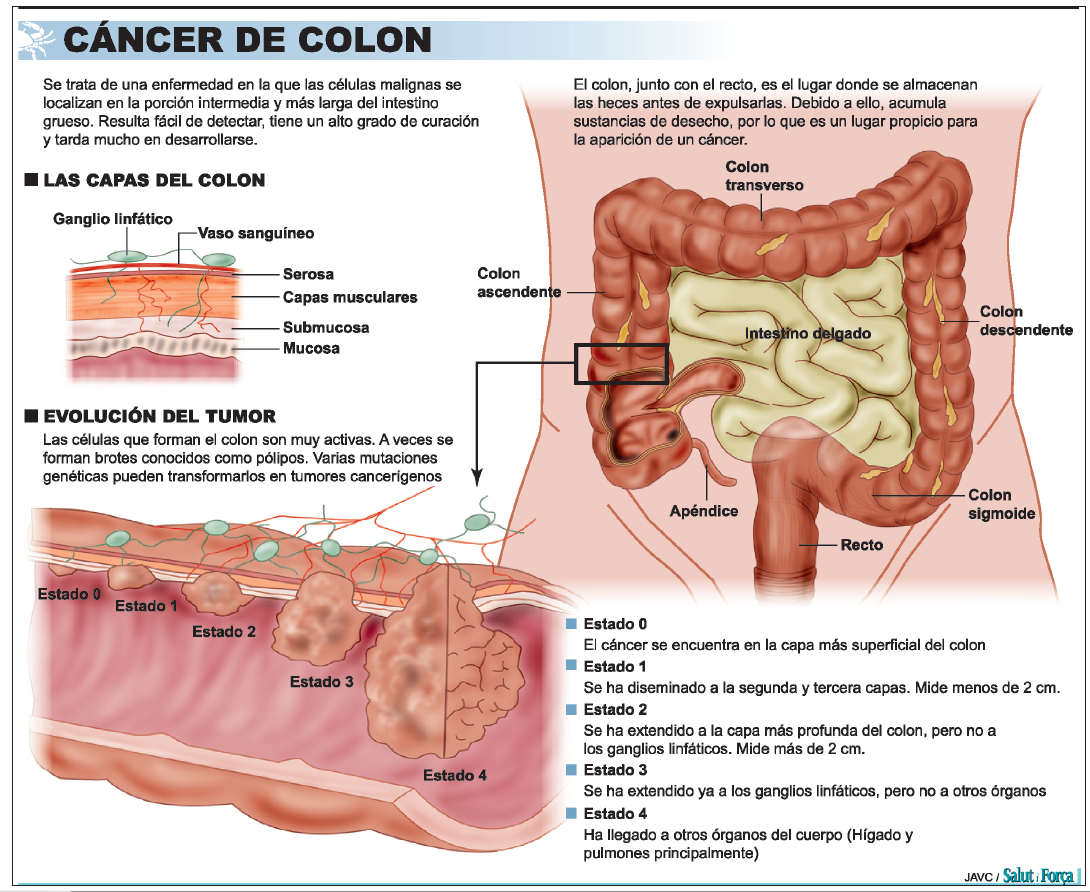 cancer colorectal nombre