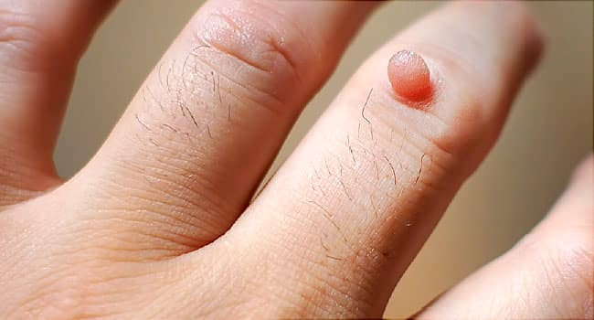 are warts on hands normal sarcoma cancer breast