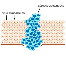 cancer que es y como se produce hpv warts diagnosis