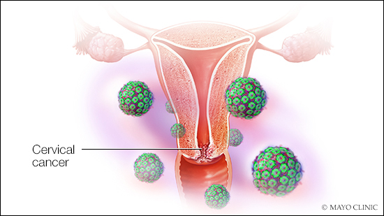 causes of uterine cancer hpv intraductal papillomas example