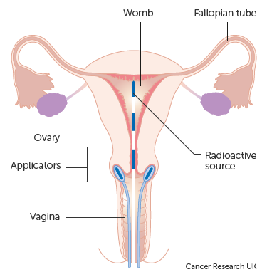 cervical cancer brachytherapy