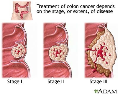 colorectal cancer bleeding