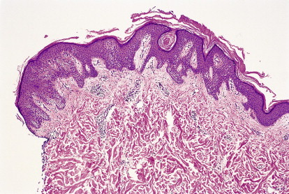 confluent reticulated papillomatosis pathology gastric cancer incidence worldwide
