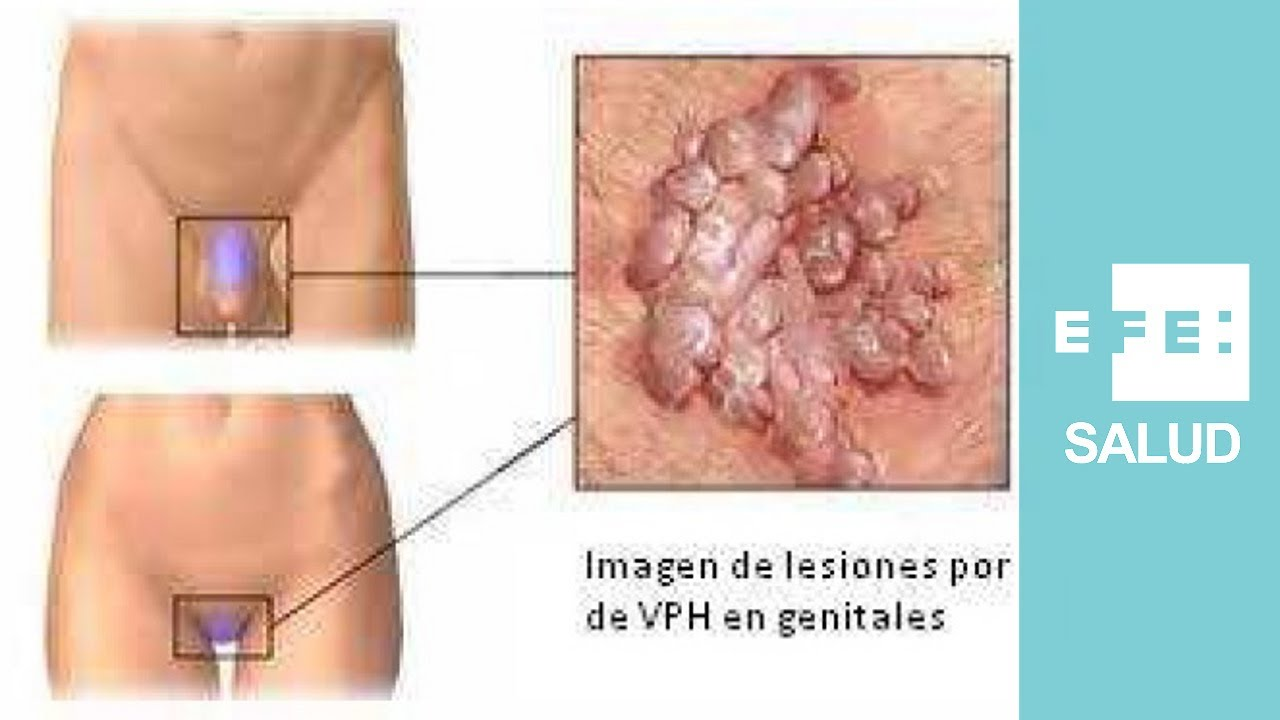 papiloma humano ano hombres hpv reflex meaning