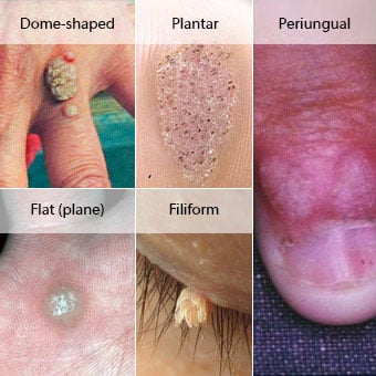 hpv wart removal on face cancer colon guidelines