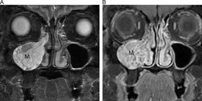 inverted papilloma nasal mri rectal cancer vs ibs