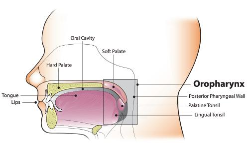 does having hpv cause cancer laryngeal papilloma tumor