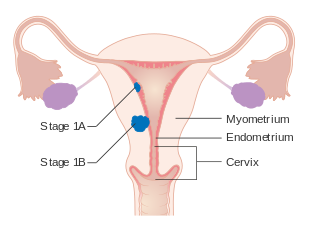 endometrial cancer usmle cheloo si ombladon