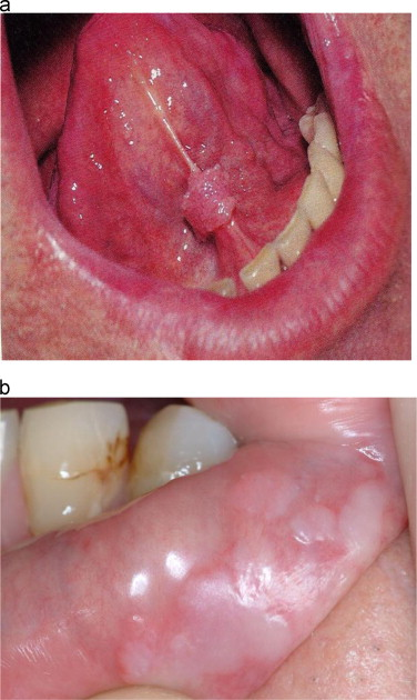 hpv warts mouth treatment