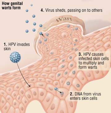 hpv treatment burning breast cancer genetic counseling