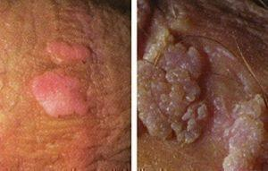 hpv near genital warts hpv and ovarian cancer risk