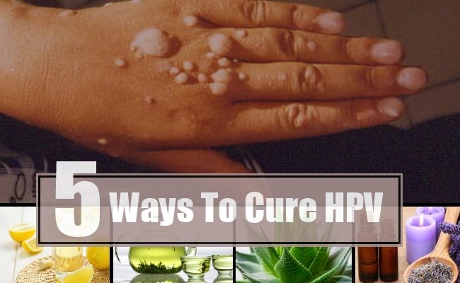 hpv virus can it be cured vestibular papillomatosis after yeast infection