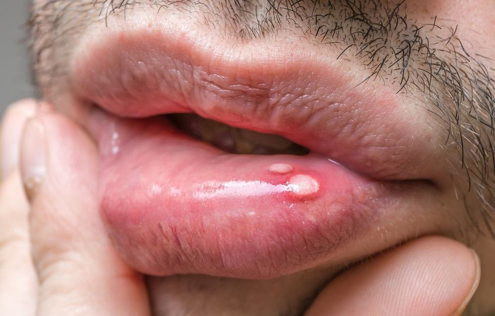 hpv wart on lip helminth disease in