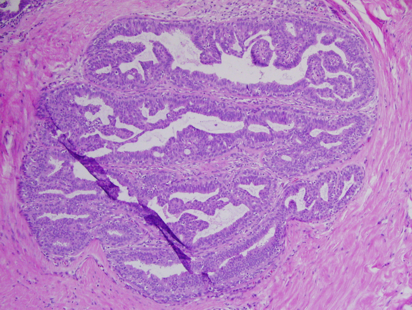 intraductal papillomas example