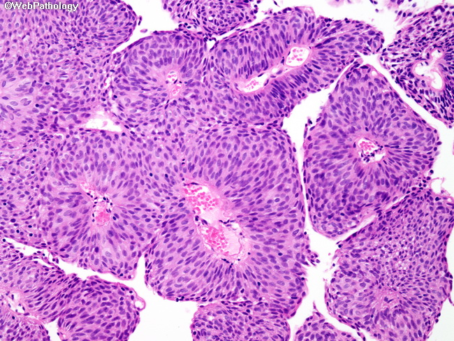 papillary urothelial carcinoma rectal cancer nice guidelines