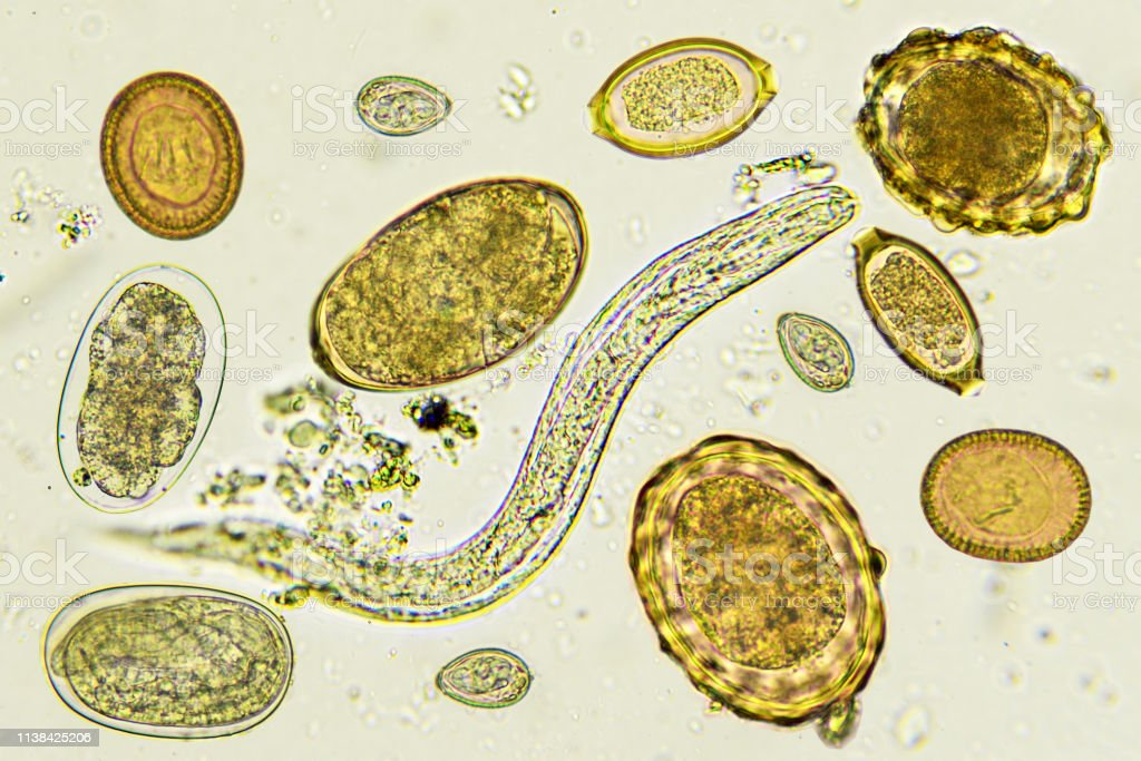 Parasitic helminths new weapons against immunological disorders