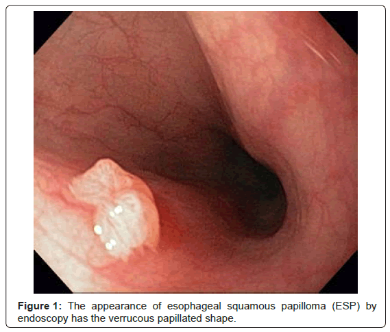 squamous papilloma esophagus causes